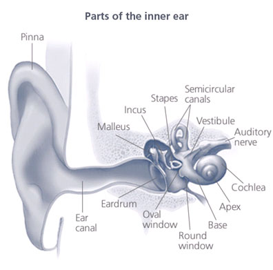 the ear and hearing loss Continued sensorineural hearing loss happens most often from damage to the hair cells in the inner ear other causes include damage to the nerve for hearing, called the auditory nerve, or the brain.
