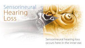 Sensorineural-Hearing-Loss-676x381